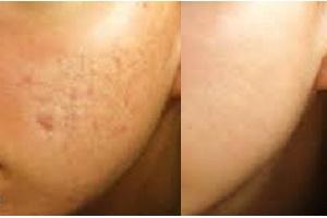 Anti acne & scar